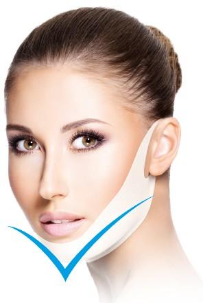 aesthetic world Kinn-Maske V-line (Einzelsachet)